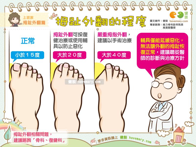 拇趾外翻,拇指外翻,腳趾變形,健康圖文,健康漫畫,漫漫健康,圖解健康,高逢駿,高逢駿醫師,Hallux valgus, thumb valgus, toe deformation,健談,健談網,havemary